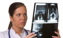 Doctorii au fost ȘOCAȚI de ce au găsit în creierul unui bărbat, după 4 ani investigații medicale
