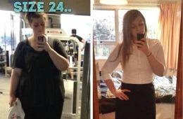 Ce s-a întâmplat cu abdomenul unei adolescente care a slăbit 55 de kilograme?