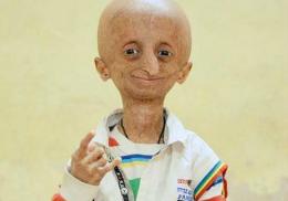 """Băieţelul care suferă de """"boala lui Benjamin Button"""" i-a uimit pe medici. Are 15 ani, dar arată de 80"""
